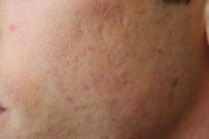 laser cicatrici milano TOBE24