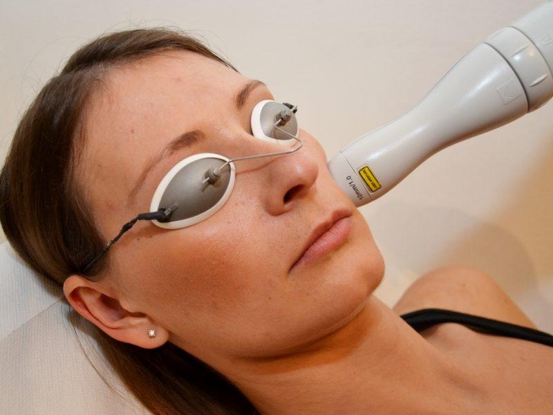 laser cicatrici acne milano TOBE24