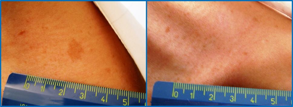 foto prima e dopo macchie cutanee TOBE24